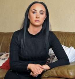 Gemma Williams from Manchester suffered severe burns to her skin after having an allergic reaction to a hair dye. See Ross Parry story RPYHAIR : A woman was shocked after doctors told her she was just an hour from death - because she DYED her hair black. Gemma Williams, 24, contracted septicaemia after lathering jet black Nice and Easy hair dye on top of her barnet. Make-up and beauty artist Gemma had been just a day away from death after breaking out in red puffy skin around her ears after putting the £4.99 dye on her hair. The dye had seeped into her blood following her bad reaction - which glued her eyes shut and burnt her skin. But just a week later she was told by doctors at Manchester Royal Infirmary that she if she hadn't come back to hospital she would have died due to the poison in her system. 24 March 2017.